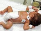 750 деца се раждат със сърдечни малформации всяка година