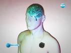 Дълбока мозъчна стимулация помага на болни от паркинсон