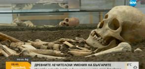 Древните лечителски умения на българите: Изложба показва медицината през вековете (ВИДЕО)