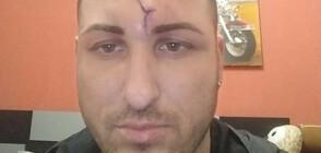 ПАК АГРЕСИЯ НА ПЪТЯ: Пребиха млад мъж и приятелката му във Варна (ВИДЕО)
