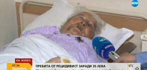 Зверски пребитата жена от Гурково разказва за ужаса от преживяното (ВИДЕО)