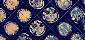 НЗОК поема финансирането на мозъчни пейсмейкъри