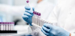 Лекарство срещу зъбобол боядиса кръвта на американка в синьо (СНИМКА)