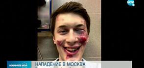 Блогър и критик на Кремъл е нападнат в Москва