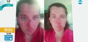 Мъж с биполярно разстройство преби сестра си (ВИДЕО)