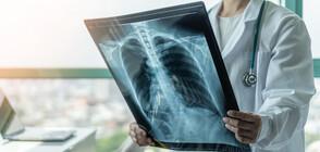 Германски учени: След COVID-19 често се стига до увреждане на органи