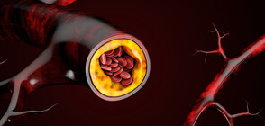 Как да понижим холестерола без лекарства