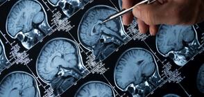 Учени откриха първопричината за болестта на Алцхаймер