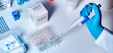 Акредитирана лаборатория изследва за COVID-19 в Бургас (ВИДЕО)