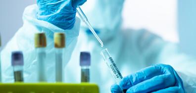 189 нови случаи на коронавирус у нас