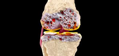 Ортопеди, травматолози и ревматолози разкриха…