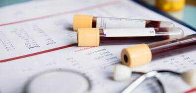 Великобритания започва мащабни изпитания на кръвен тест за 50 вида рак
